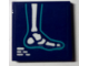 Part No: 3068bpb1144  Name: Tile 2 x 2 with Groove with Foot X-Ray Pattern (Sticker) - Set 41318