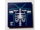 Part No: 3068bpb1145  Name: Tile 2 x 2 with Groove with Chest X-Ray Pattern (Sticker) - Set 41318